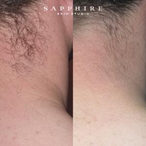 ipl hair removal perth