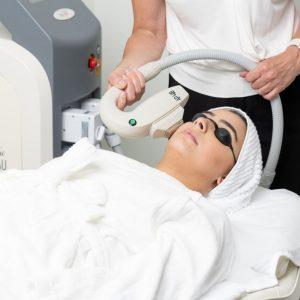 IPL Skin Rejuvenation Perth
