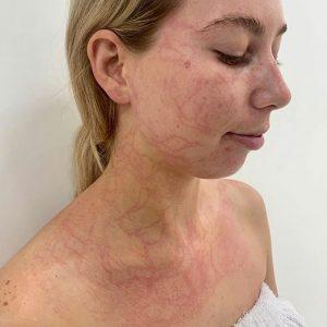 lymphatictherapyperth